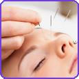 acupiuncture