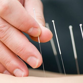 practioners-image-link-acupuncturists
