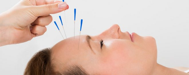 5 Reasons To Consider Trying Acupuncture