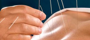 The Many Benefits of Acupuncture